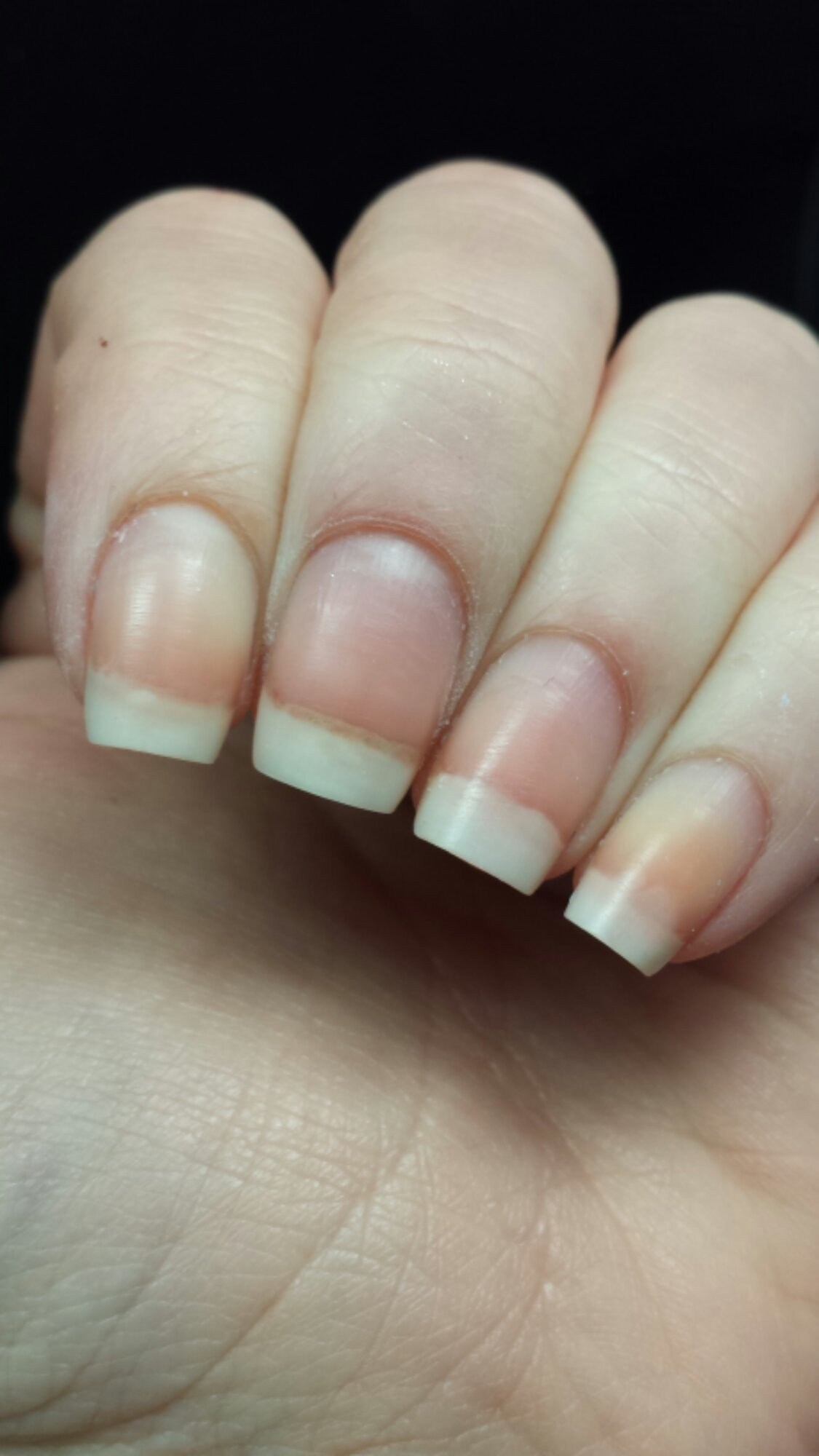 how to keep nails from splitting and peeling